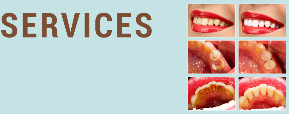 SERVICES | Patients before and after dental work in Peterborough, ON